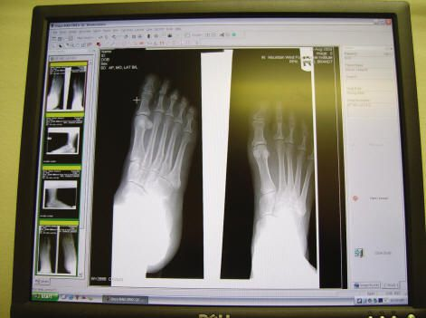 X-ray View