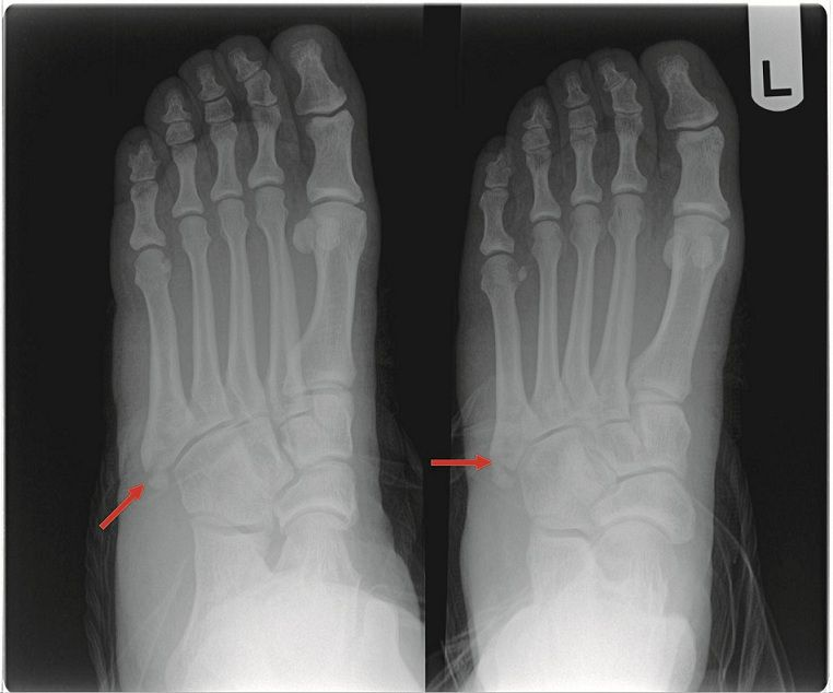 X-ray Dr Gibson