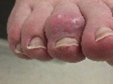 Curling Toes | Hammer Toe | Hammertoe | Painful